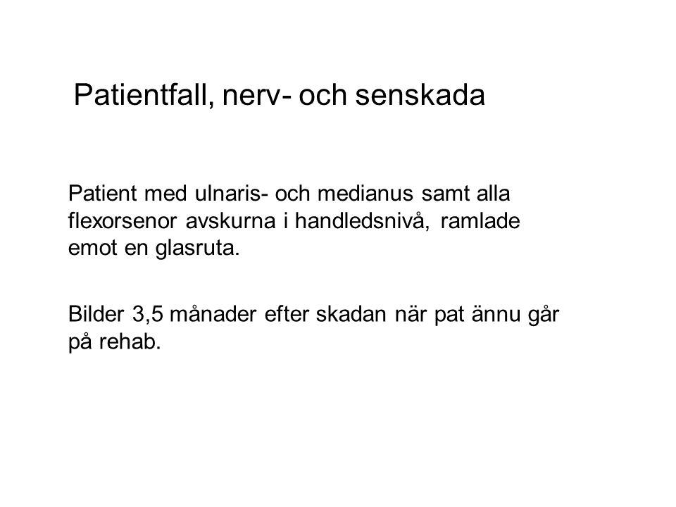 Patientfall, nerv- och senskada