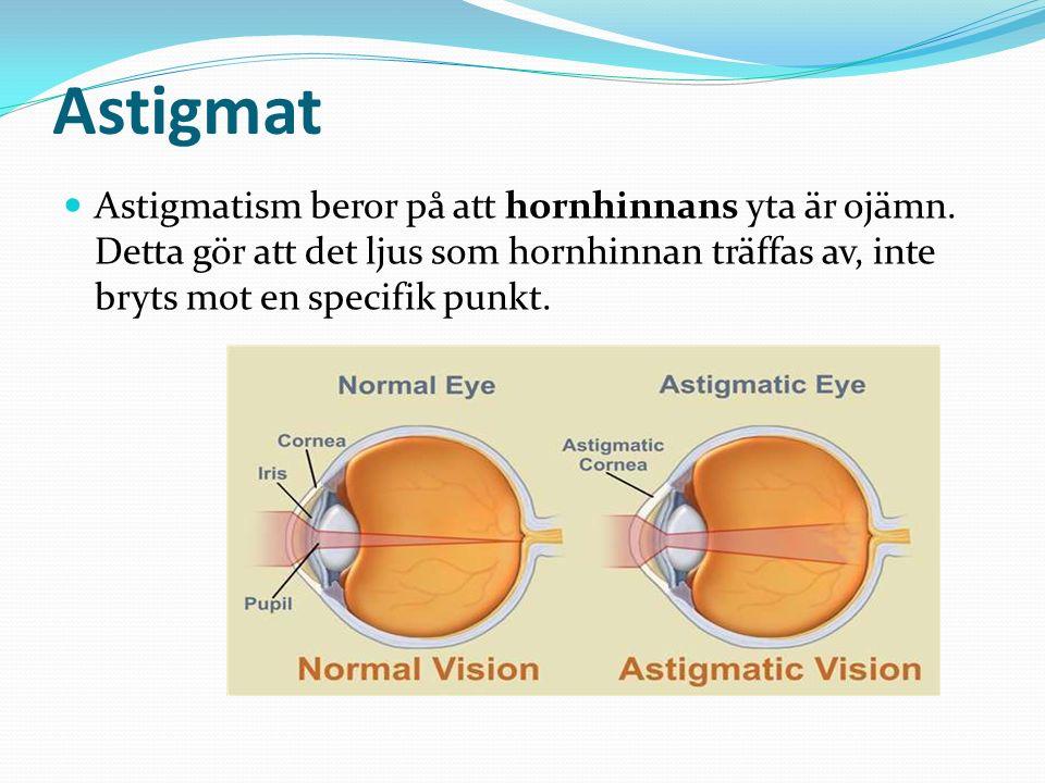 Astigmat Astigmatism beror på att hornhinnans yta är ojämn. Detta gör att det ljus som hornhinnan träffas av, inte bryts mot en specifik punkt.