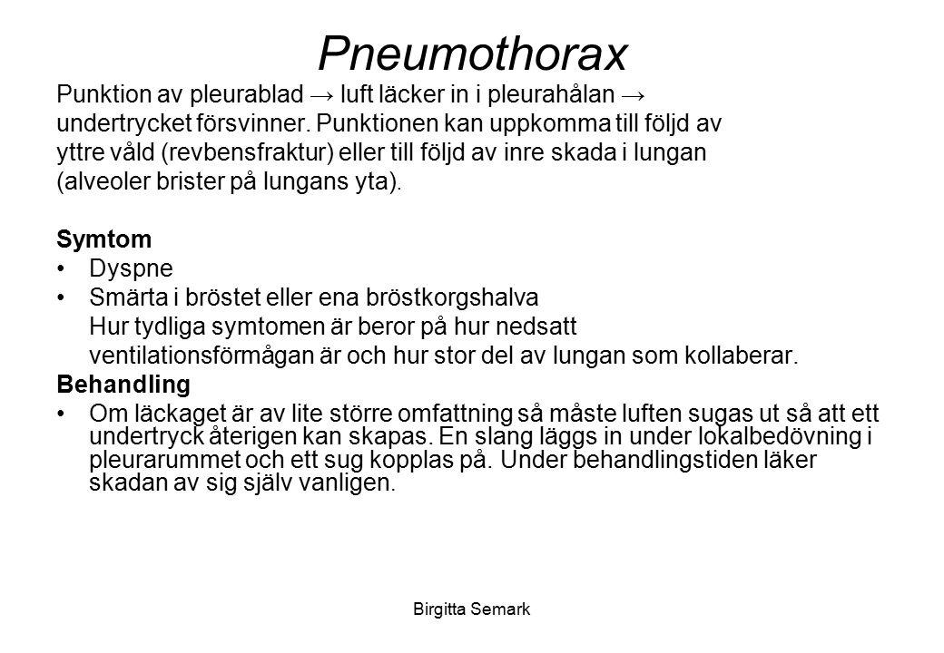 Pneumothorax Punktion av pleurablad → luft läcker in i pleurahålan →