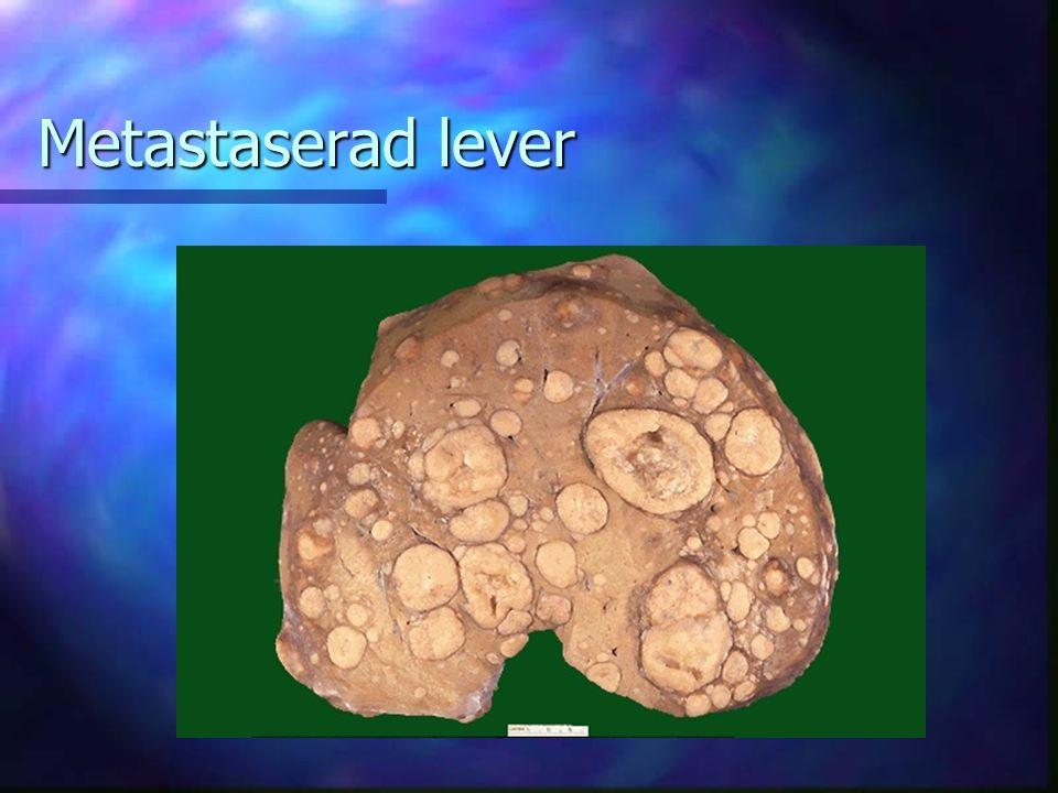 Metastaserad lever