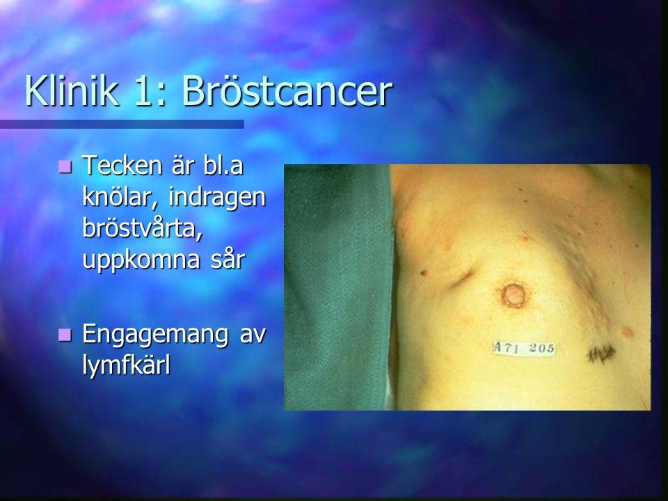 Klinik 1: Bröstcancer Tecken är bl.a knölar, indragen bröstvårta, uppkomna sår.
