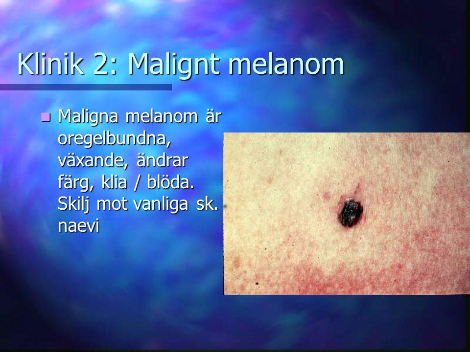 Klinik 2: Malignt melanom
