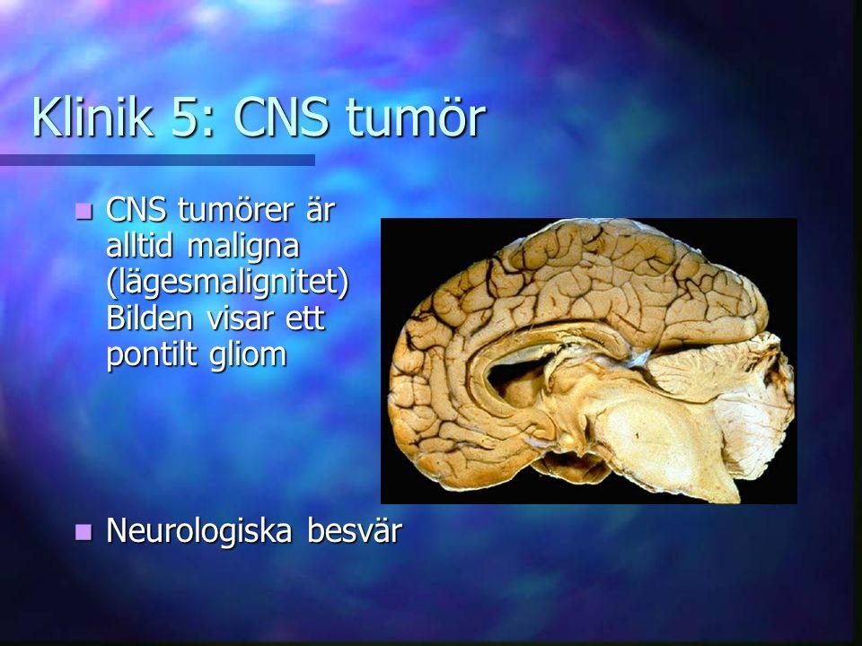 Klinik 5: CNS tumör CNS tumörer är alltid maligna (lägesmalignitet) Bilden visar ett pontilt gliom.