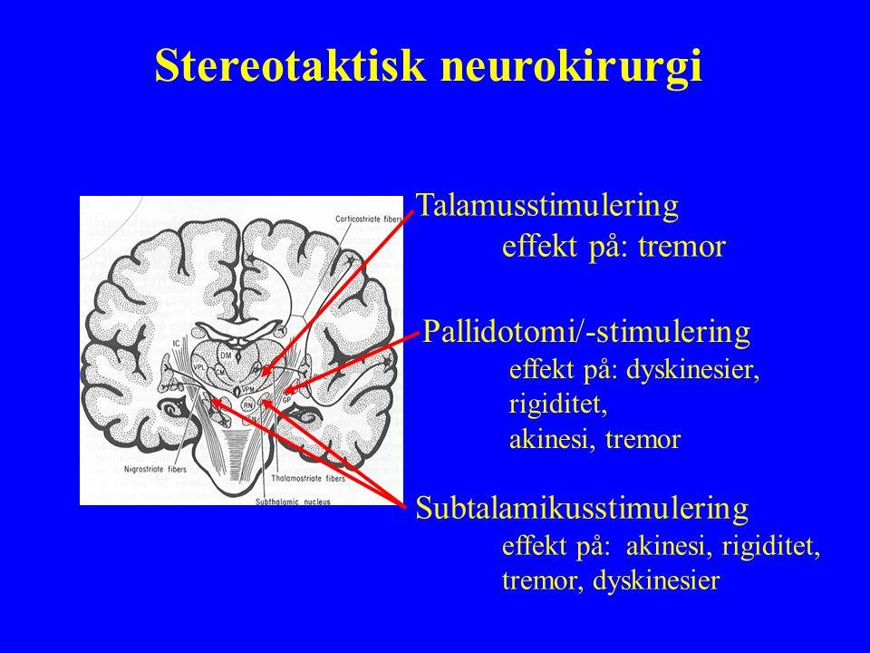 Stereotaktisk neurokirurgi