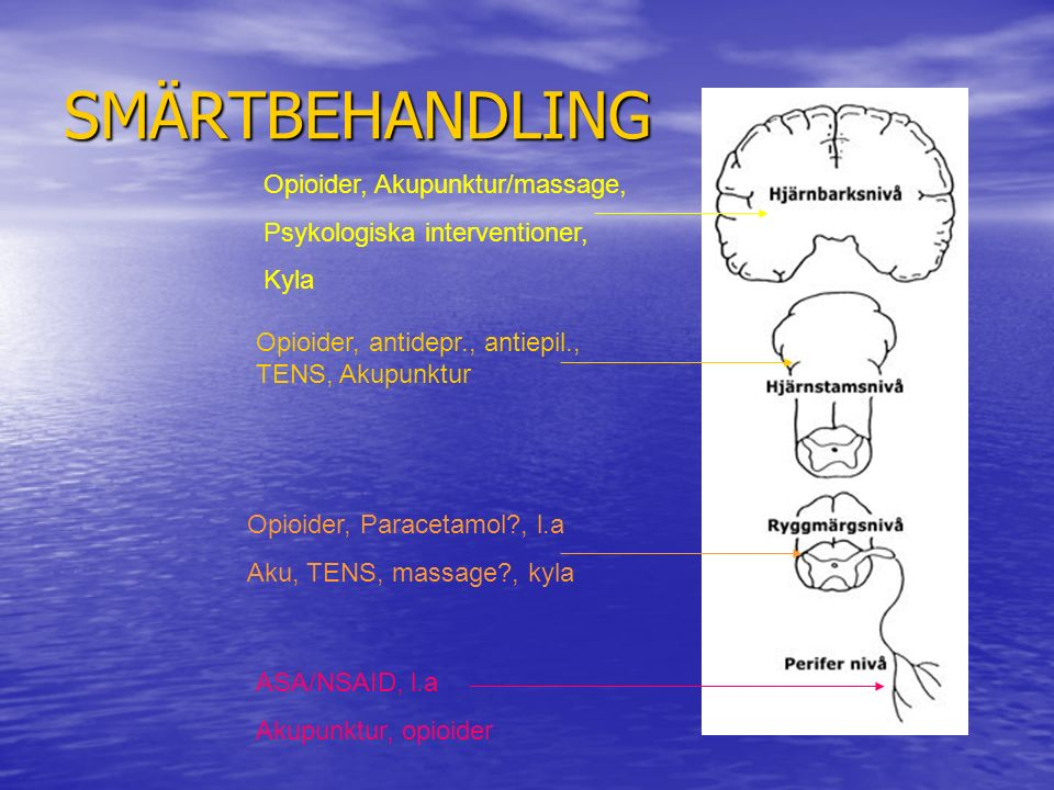 SMÄRTBEHANDLING Opioider, Akupunktur/massage,