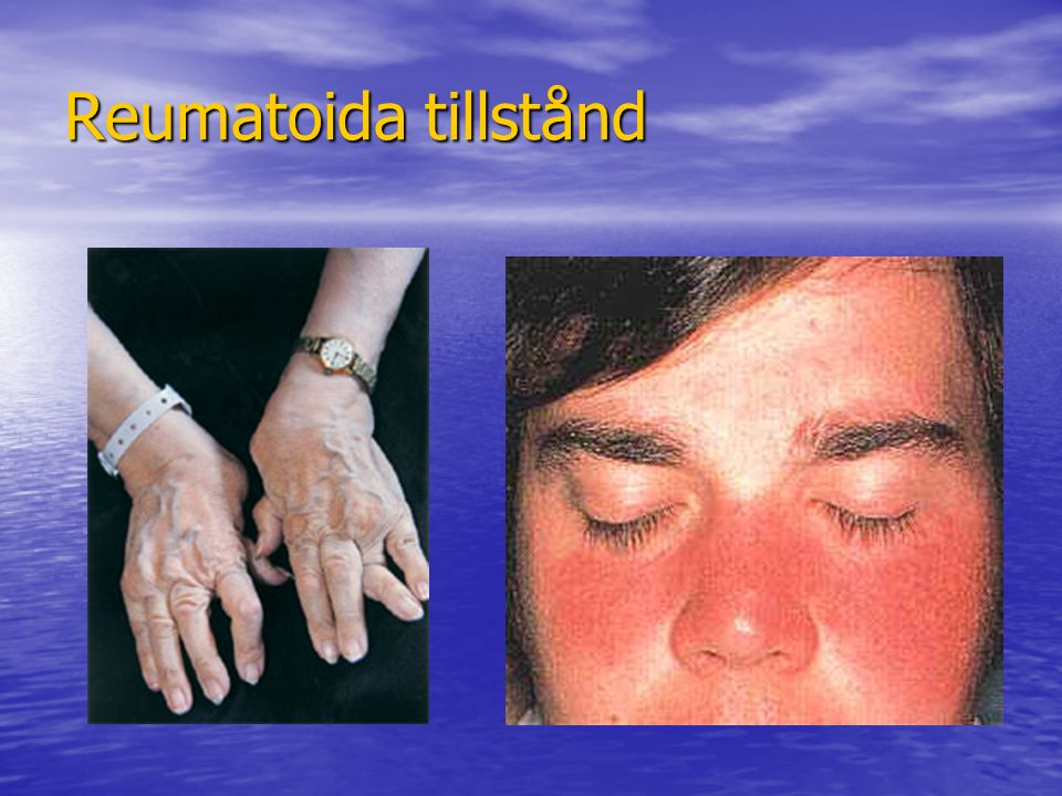 Reumatoida tillstånd