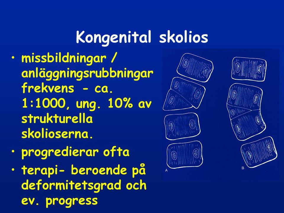 Kongenital skolios missbildningar / anläggningsrubbningar frekvens - ca. 1:1000, ung. 10% av strukturella skolioserna.