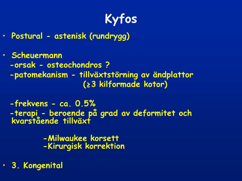 Kyfos Postural - astenisk (rundrygg) Scheuermann