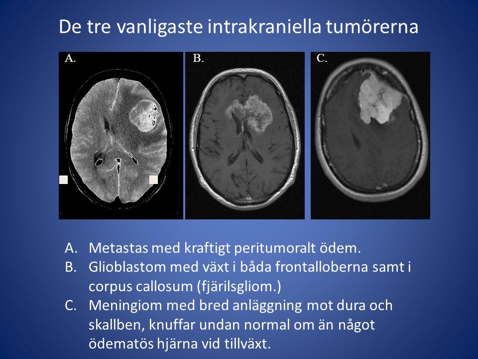 De tre vanligaste intrakraniella tumörerna