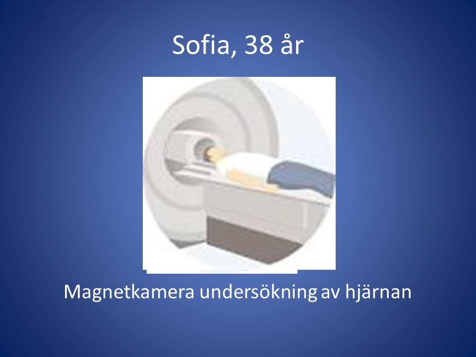 Magnetkamera undersökning av hjärnan
