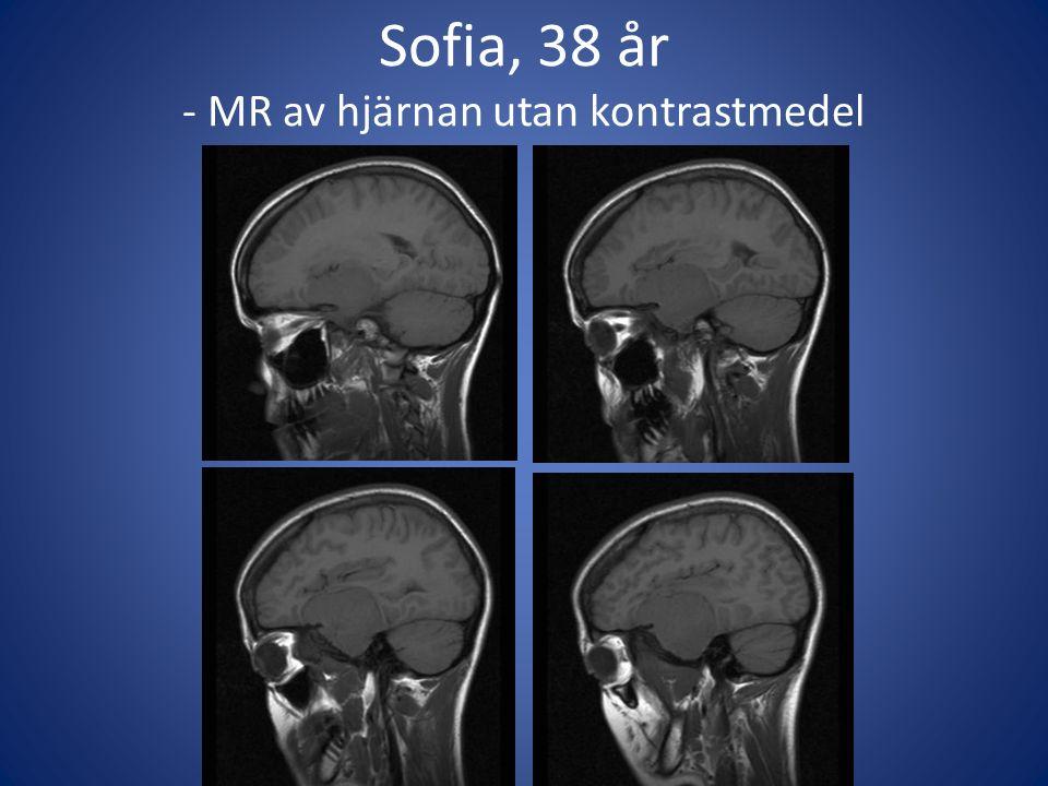 Sofia, 38 år - MR av hjärnan utan kontrastmedel
