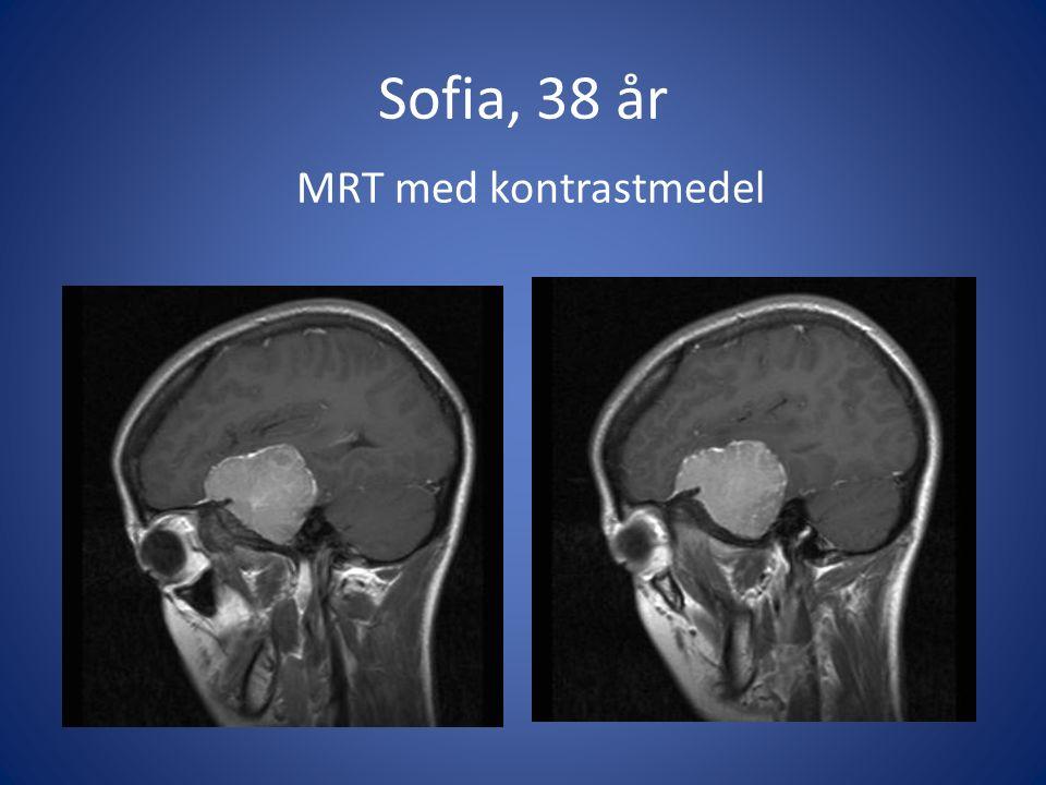 Sofia, 38 år MRT med kontrastmedel