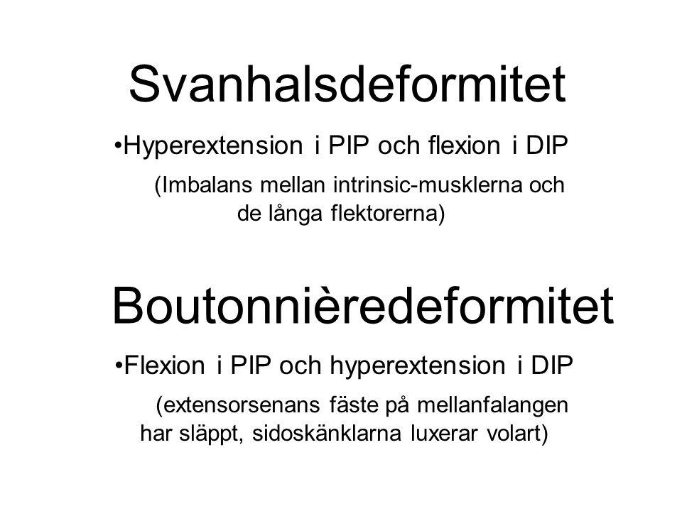 Boutonnièredeformitet