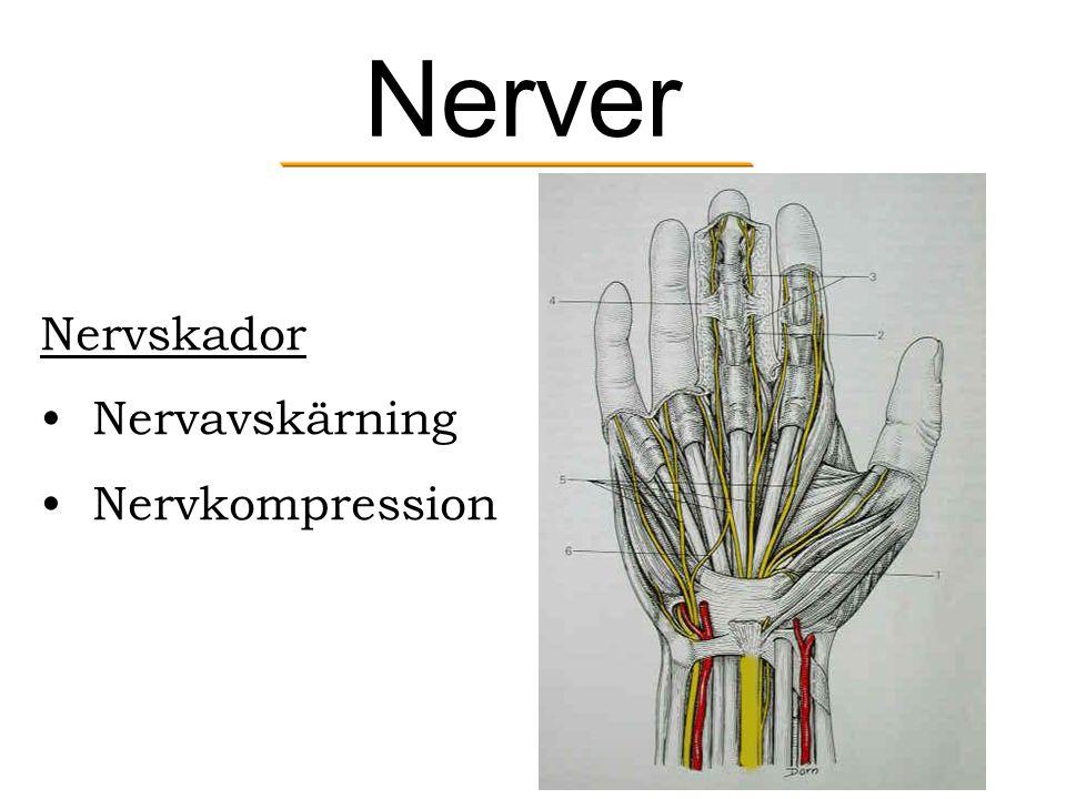 Nerver Nervskador Nervavskärning Nervkompression