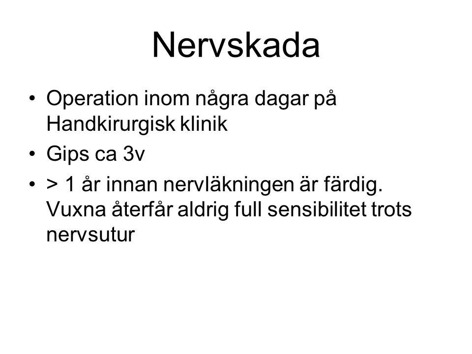 Nervskada Operation inom några dagar på Handkirurgisk klinik