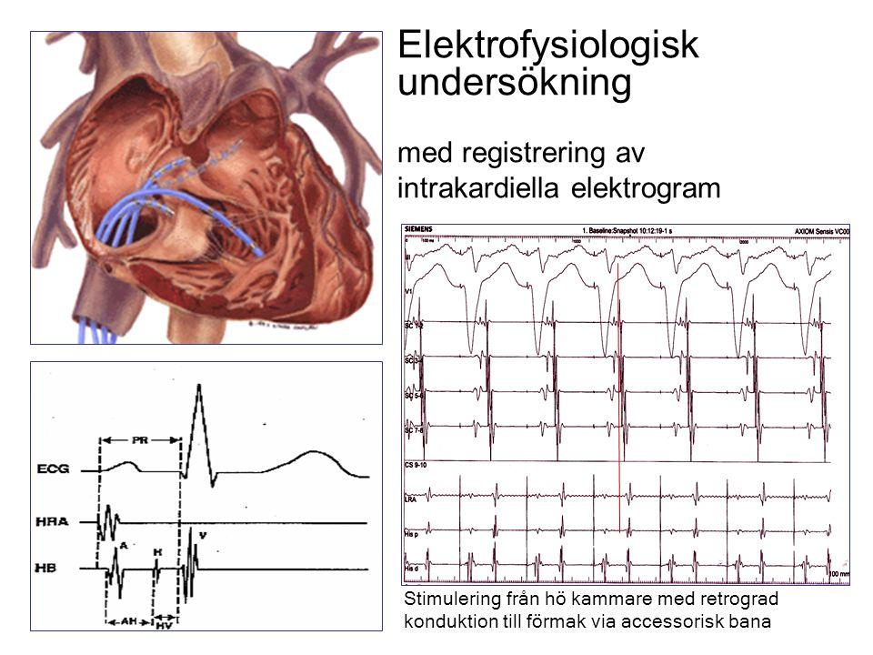 Elektrofysiologisk undersökning med registrering av intrakardiella elektrogram