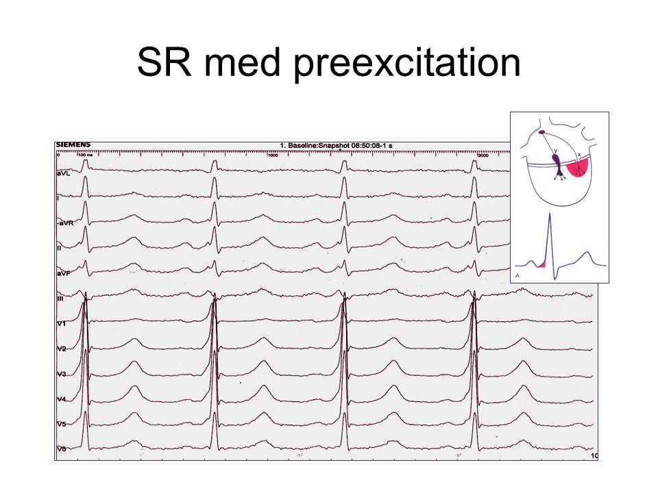 SR med preexcitation