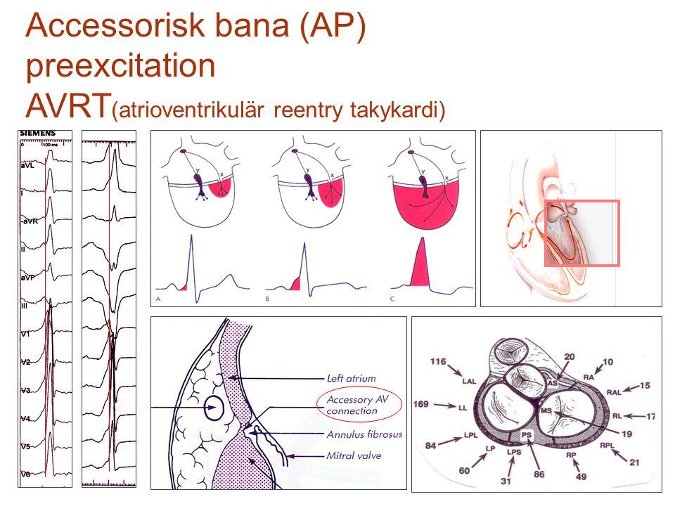 Accessorisk bana (AP) preexcitation AVRT(atrioventrikulär reentry takykardi)