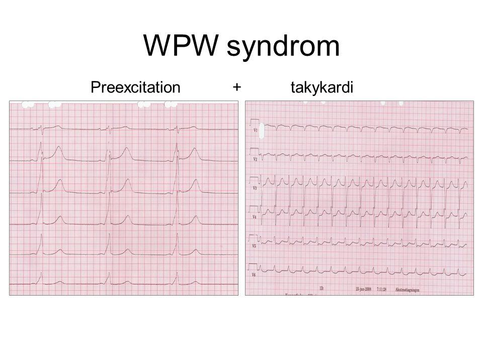 WPW syndrom Preexcitation + takykardi