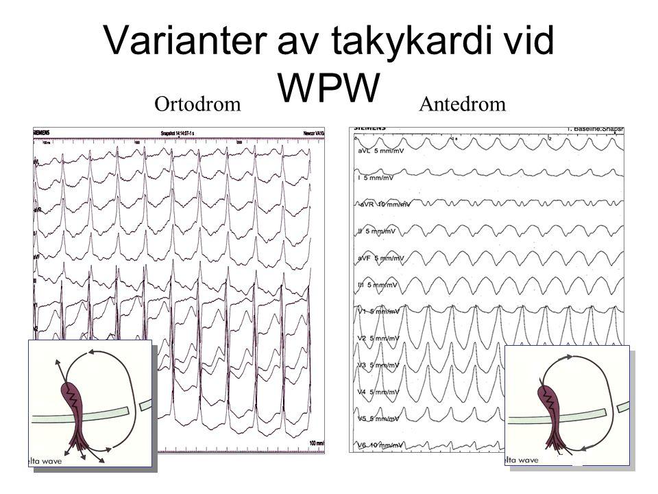 Varianter av takykardi vid WPW