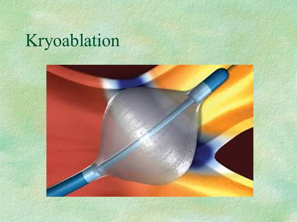Kryoablation