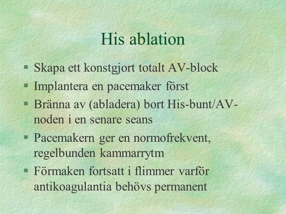 His ablation Skapa ett konstgjort totalt AV-block