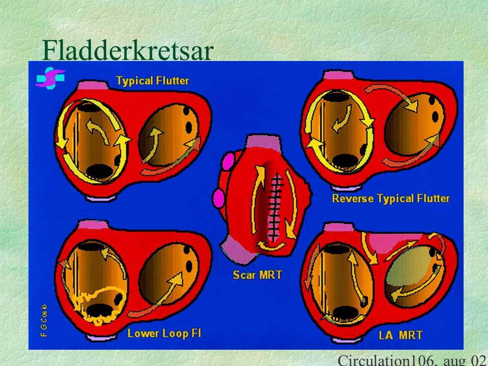 Fladderkretsar Circulation106, aug 02