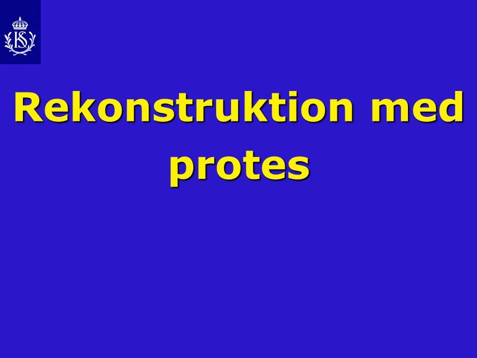 Rekonstruktion med protes