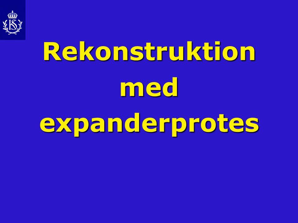 Rekonstruktion med expanderprotes