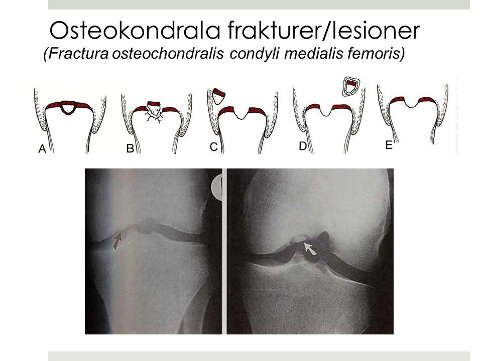 Osteokondrala frakturer/lesioner