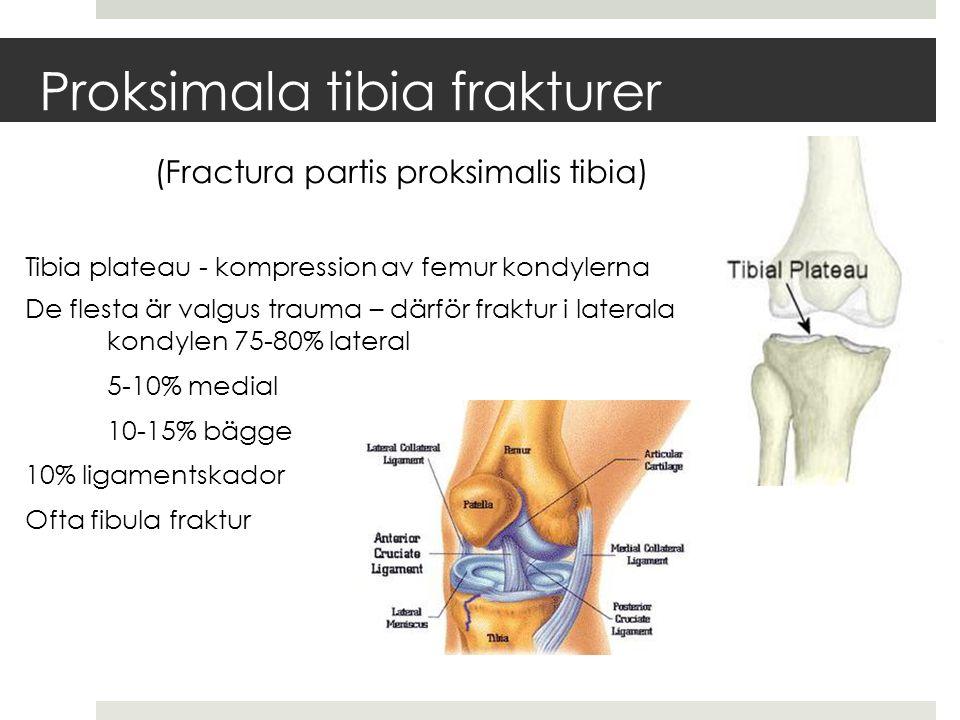 Proksimala tibia frakturer