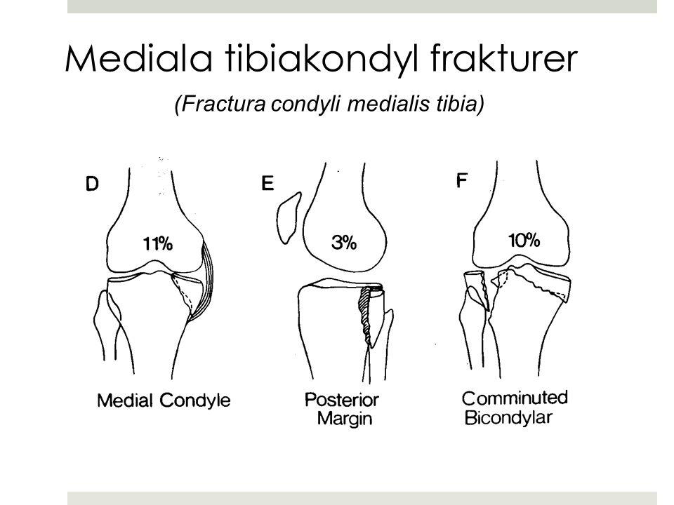 Mediala tibiakondyl frakturer