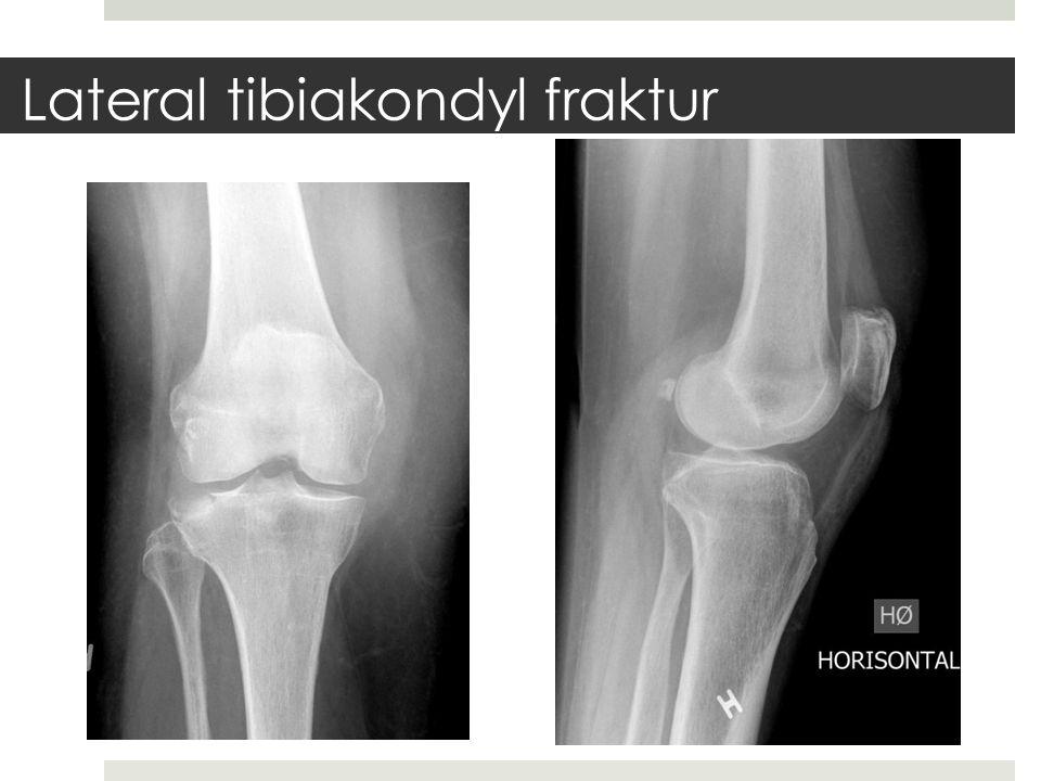 Lateral tibiakondyl fraktur