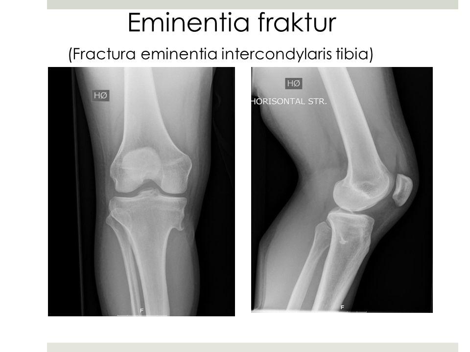 Eminentia fraktur (Fractura eminentia intercondylaris tibia)