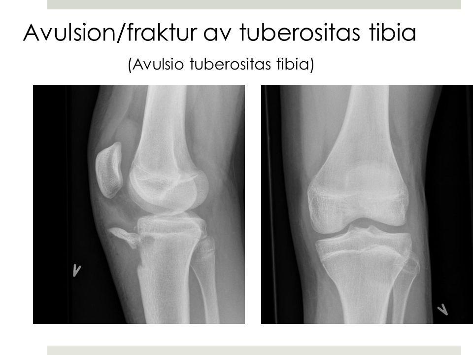 Avulsion/fraktur av tuberositas tibia