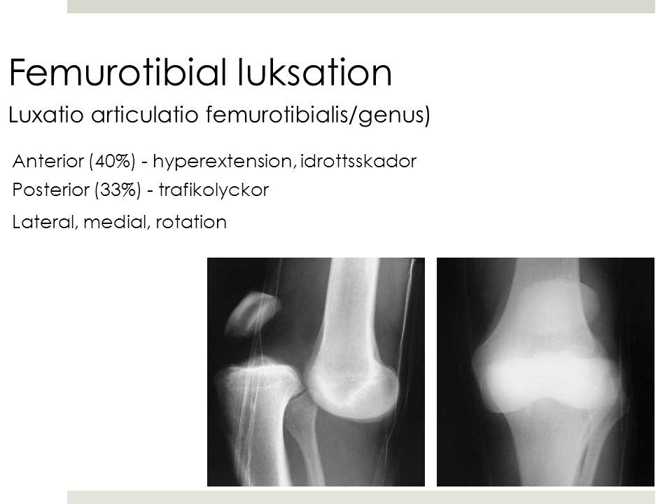Femurotibial luksation