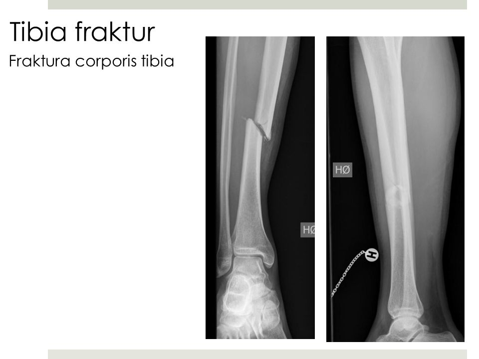 Tibia fraktur Fraktura corporis tibia