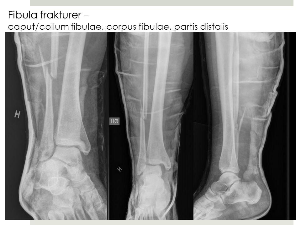 Fibula frakturer – caput/collum fibulae, corpus fibulae, partis distalis fibulae
