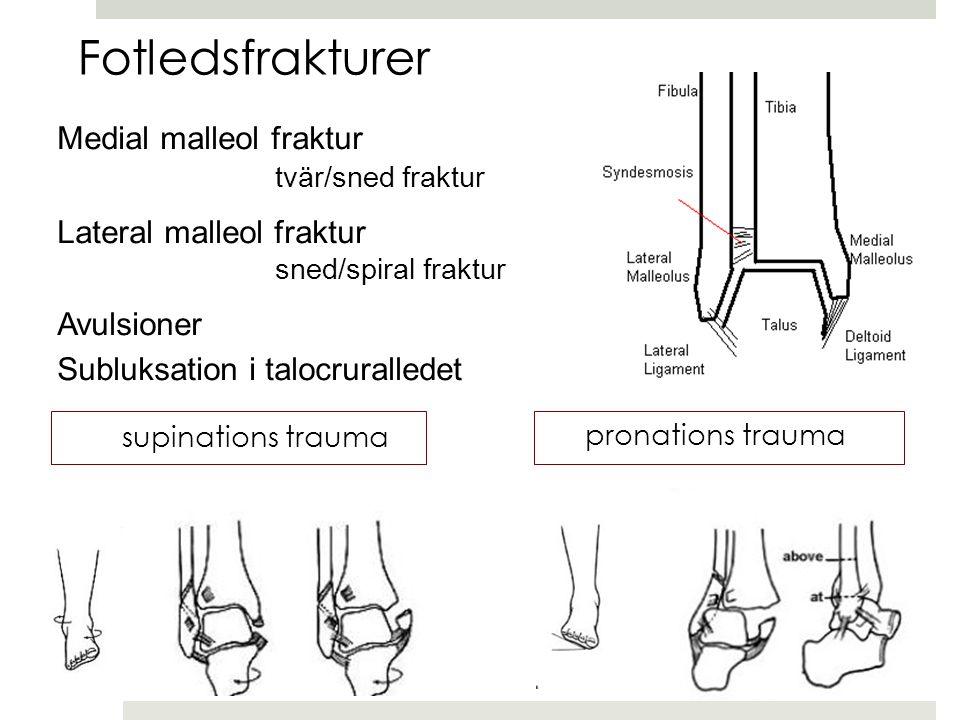 Fotledsfrakturer Medial malleol fraktur Lateral malleol fraktur