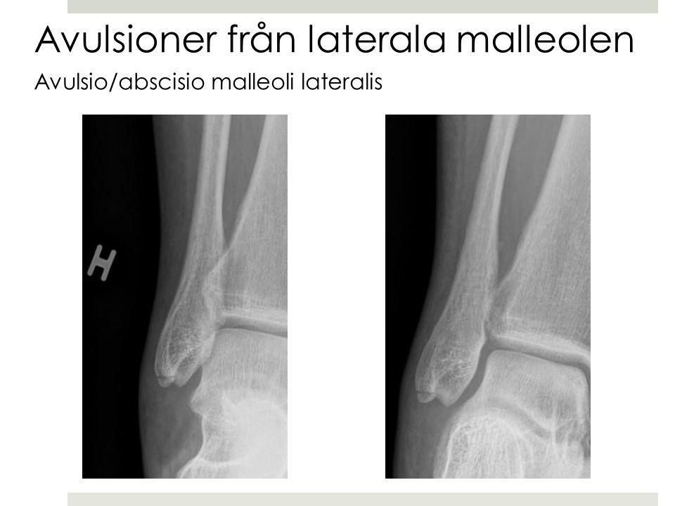 Avulsioner från laterala malleolen