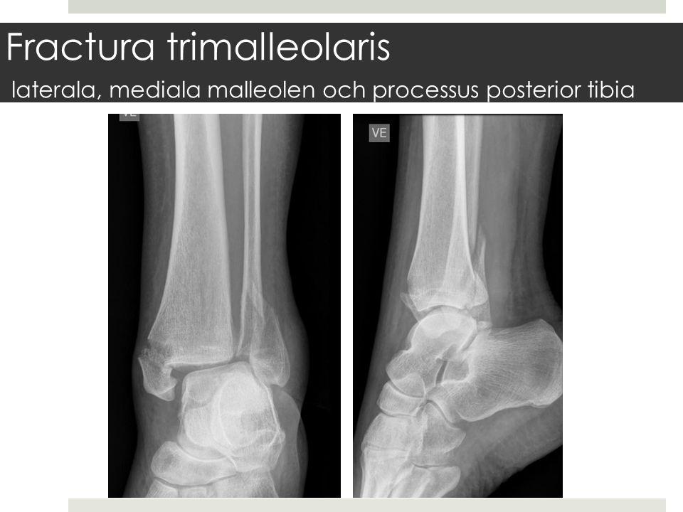 Fractura trimalleolaris