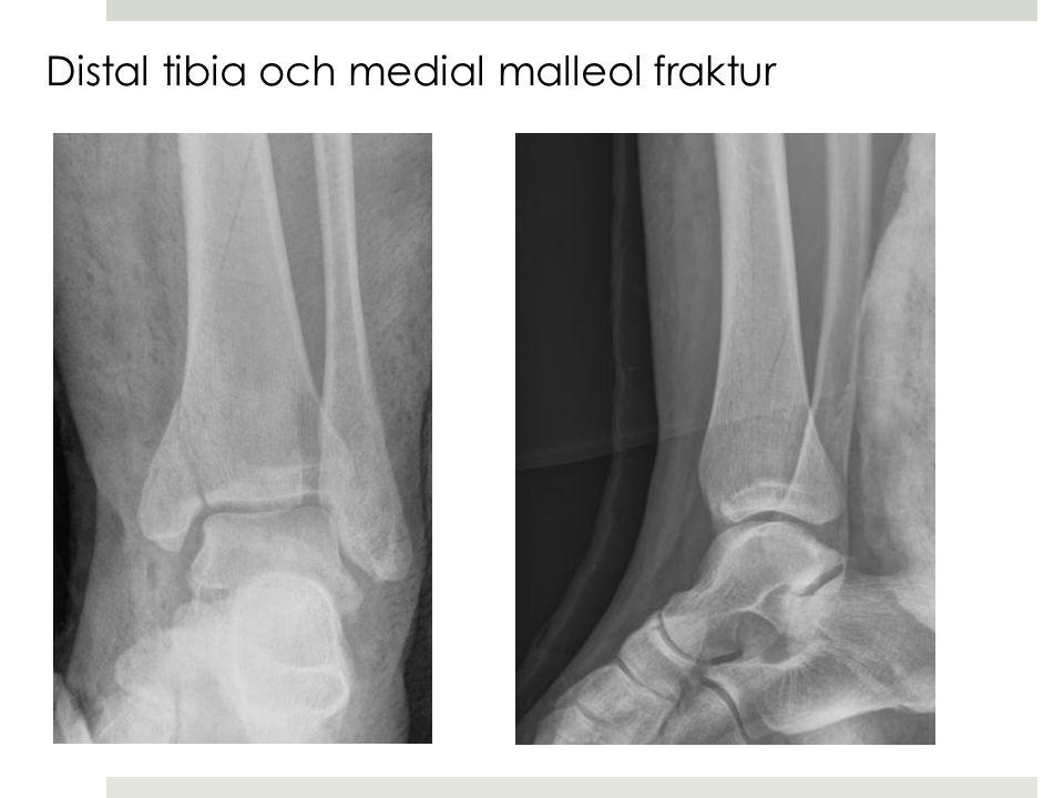 Distal tibia och medial malleol fraktur