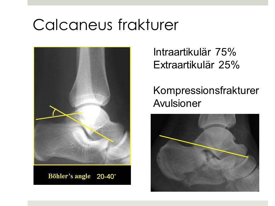 Calcaneus frakturer Intraartikulär 75% Extraartikulär 25%