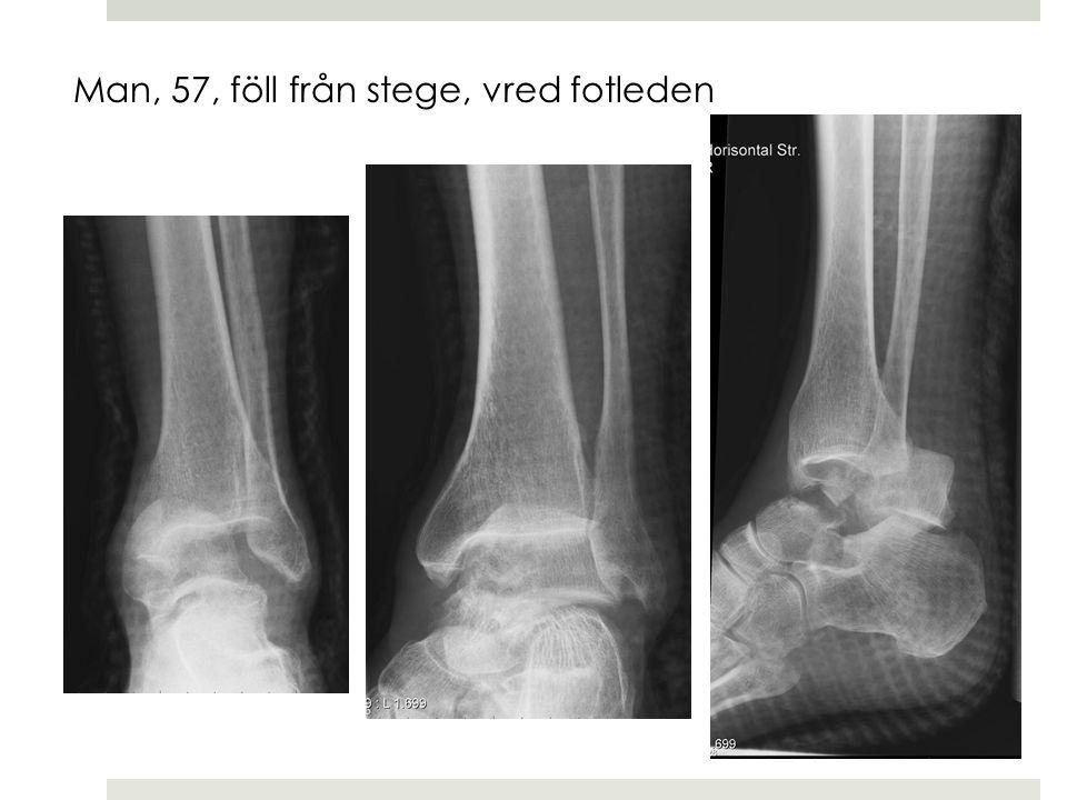Man, 57, föll från stege, vred fotleden