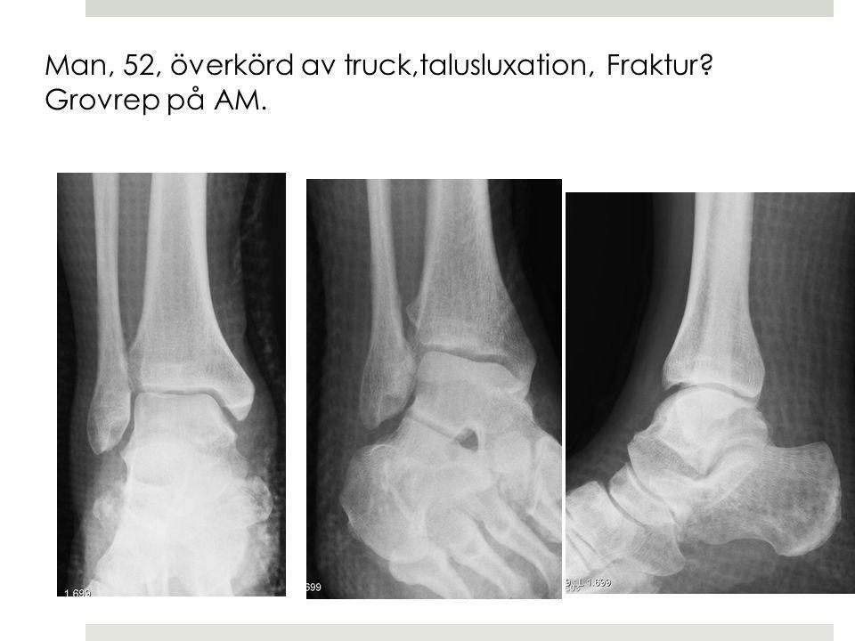 Man, 52, överkörd av truck,talusluxation, Fraktur Grovrep på AM.