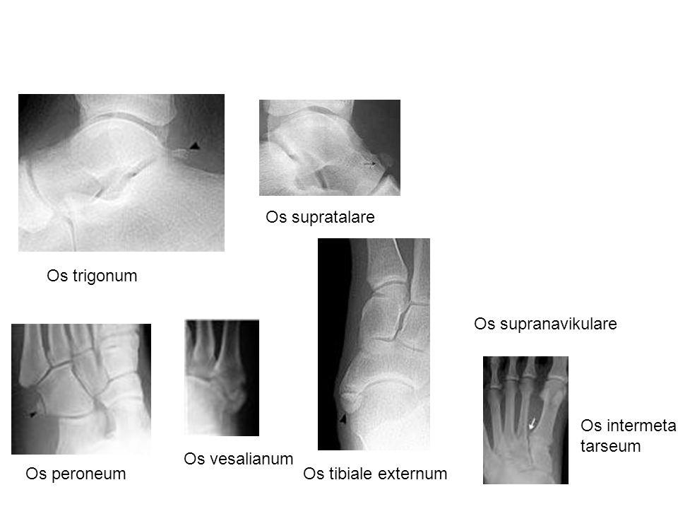 Os supratalare Os trigonum. Os supranavikulare. Os intermeta tarseum. Os vesalianum. Os peroneum.