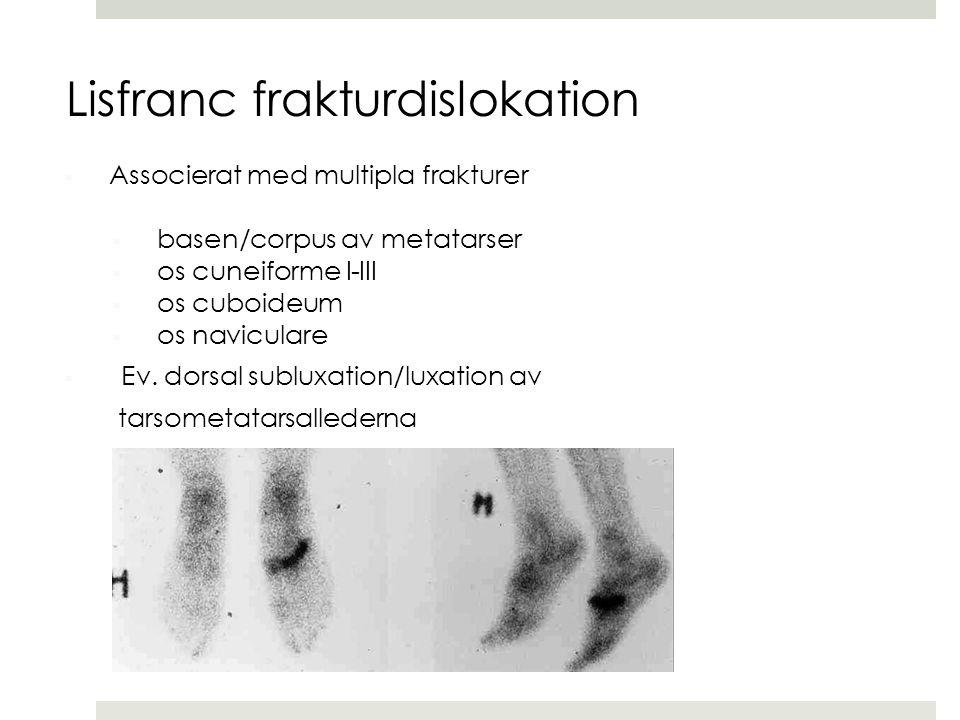 Lisfranc frakturdislokation