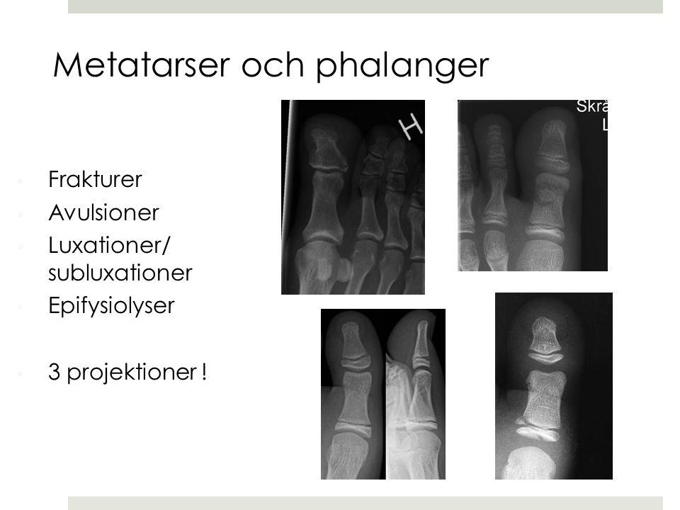 Metatarser och phalanger