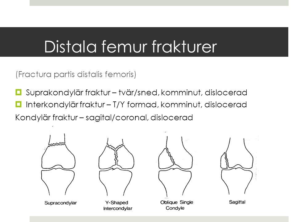Distala femur frakturer