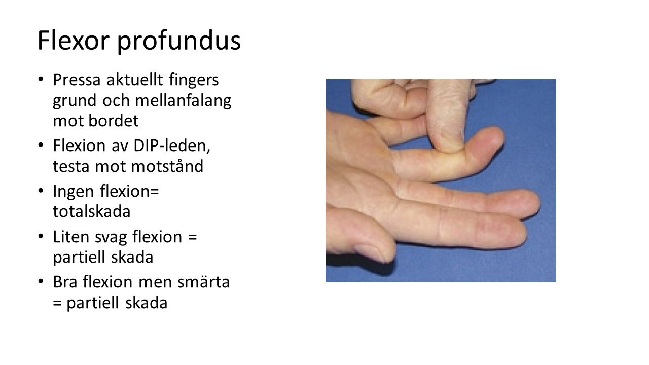 Flexor profundus Pressa aktuellt fingers grund och mellanfalang mot bordet. Flexion av DIP-leden, testa mot motstånd.